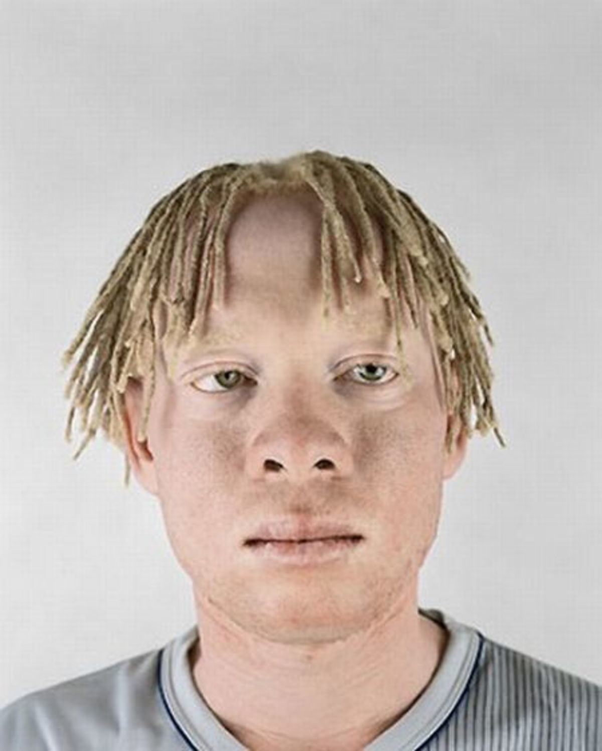 Albino black people. .. Some of those aren't albinos they have a melenism defect but aren't true albinos. Some of the ones with color in their eyes ARE albinos though since it effects