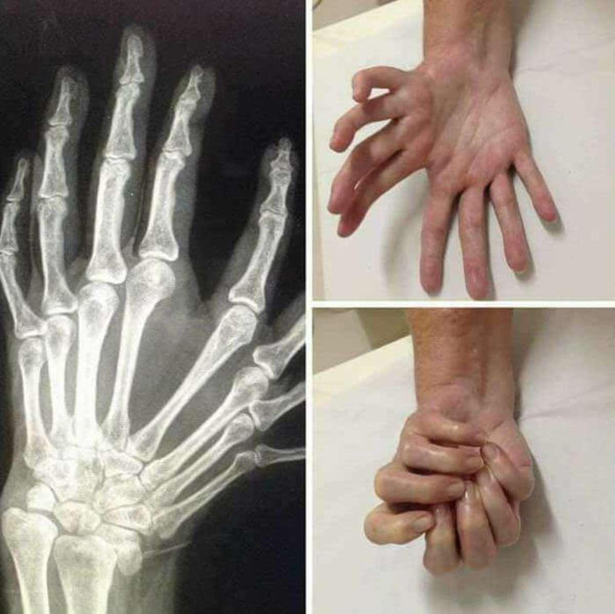 An unusual hand. .
