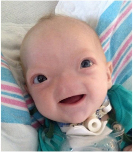 baby voldemort. people on facebook say this is cute. what does fj think?.. I mean, it's a baby, so I don't wish it ill will, but we have social constructs of what is cute or what have you, and this baby isn't on that list. Also, Harry