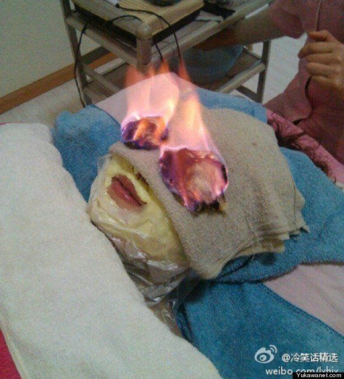 Fire Treatment Is A Type Of Traditional Chinese Medicine. .. 99% of Chinese medicine is utter