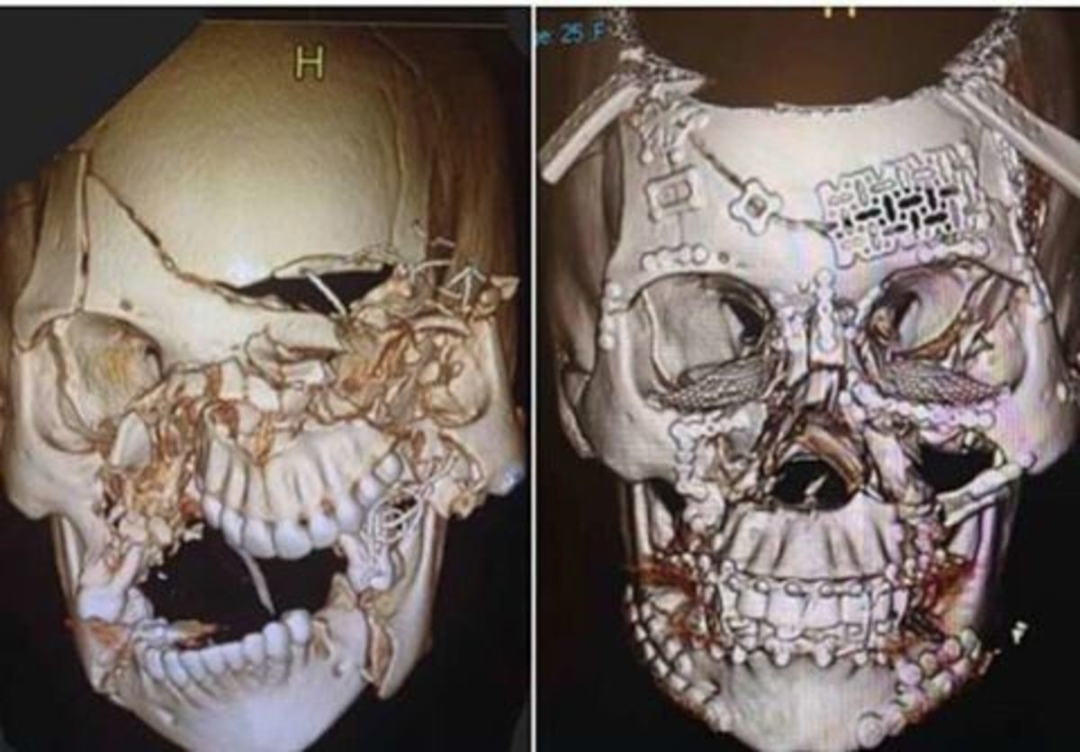 Wear A Seatbelt. The first picture is pretty horrific, but it's amazing how they were able to reconstruct her skull like they did. https://metro.co.uk/2017/07/3